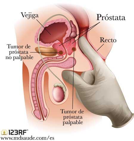 prostatitis reddit symptoms
